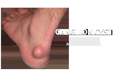 Ganglion Cysts Podiatry